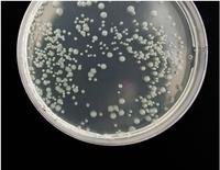 Jornada sobre resistències als antibiòtics: per un repte global, solucions compartides, el 13 de novembre a la UAB